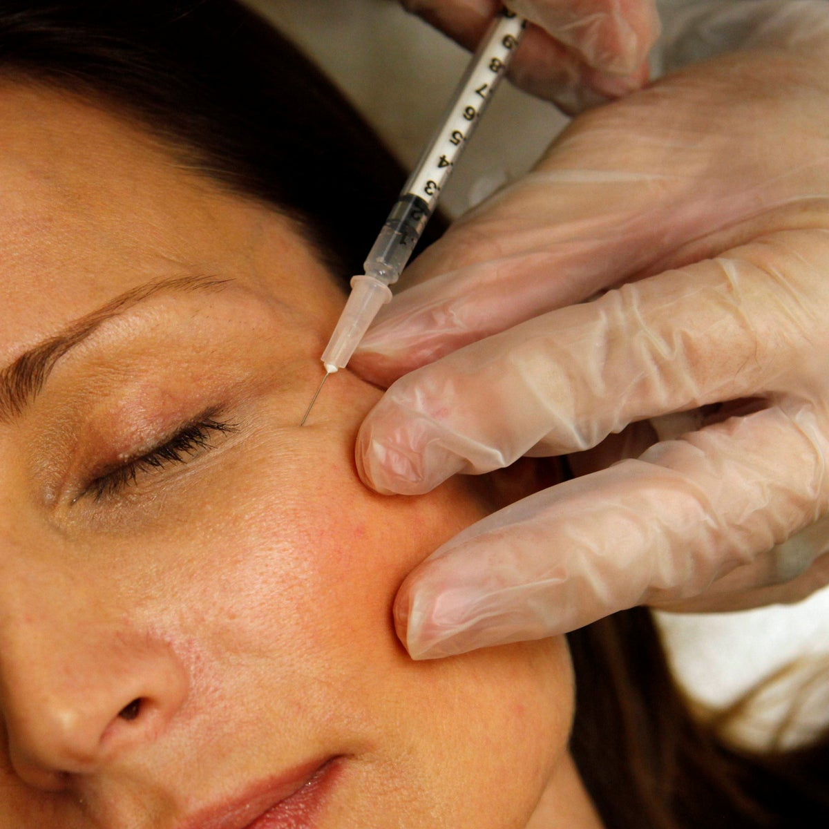 A woman has Botox injected to her eye area. There has been no delay or slowdown in the aging process in the study.