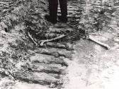 Bones at Babi Yar, Ukraine, in 1966, a photo from the Emmanuel (Amik) Diamant Collection at the National Library of Israel.
