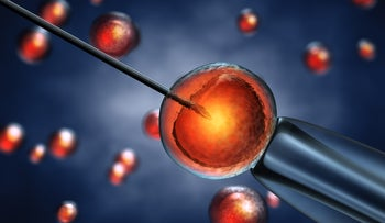 An illustration of the IVF process.