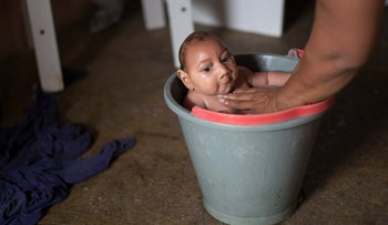 Baby Jose Wesley being bathed in a bucket, Poco Fundo, Brazil. His microcephalic condition was diagnosed a couple of days after his birth. Dec. 23, 2015.