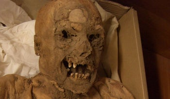 One of the roughly 300-year old Hungarian mummies - one of which is shown here - was found to, apparently, have a cancer mutation.