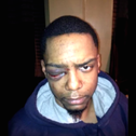 Taj Patterson was allegedly beaten by a group of Hasidic Jews, in Williamsburg, Brooklyn in 2013.