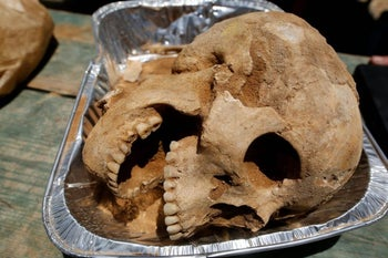 A Philistine's skull in a disposable aluminum tray; a controversial photograph, Ashkelon, summer 2016.