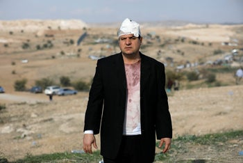 Arab Israeli lawmaker, Ayman Odeh, after he was wounded during clashes in Umm Al-Hiran, a Bedouin village in south Israel, January 18, 2017.