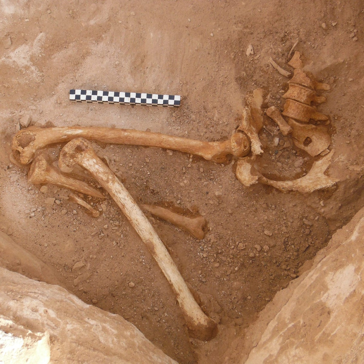 Remains of the lower body of a pregnant woman found in a tomb in the Timna valley. Some of the fetus' bones are visible in the pelvic area.