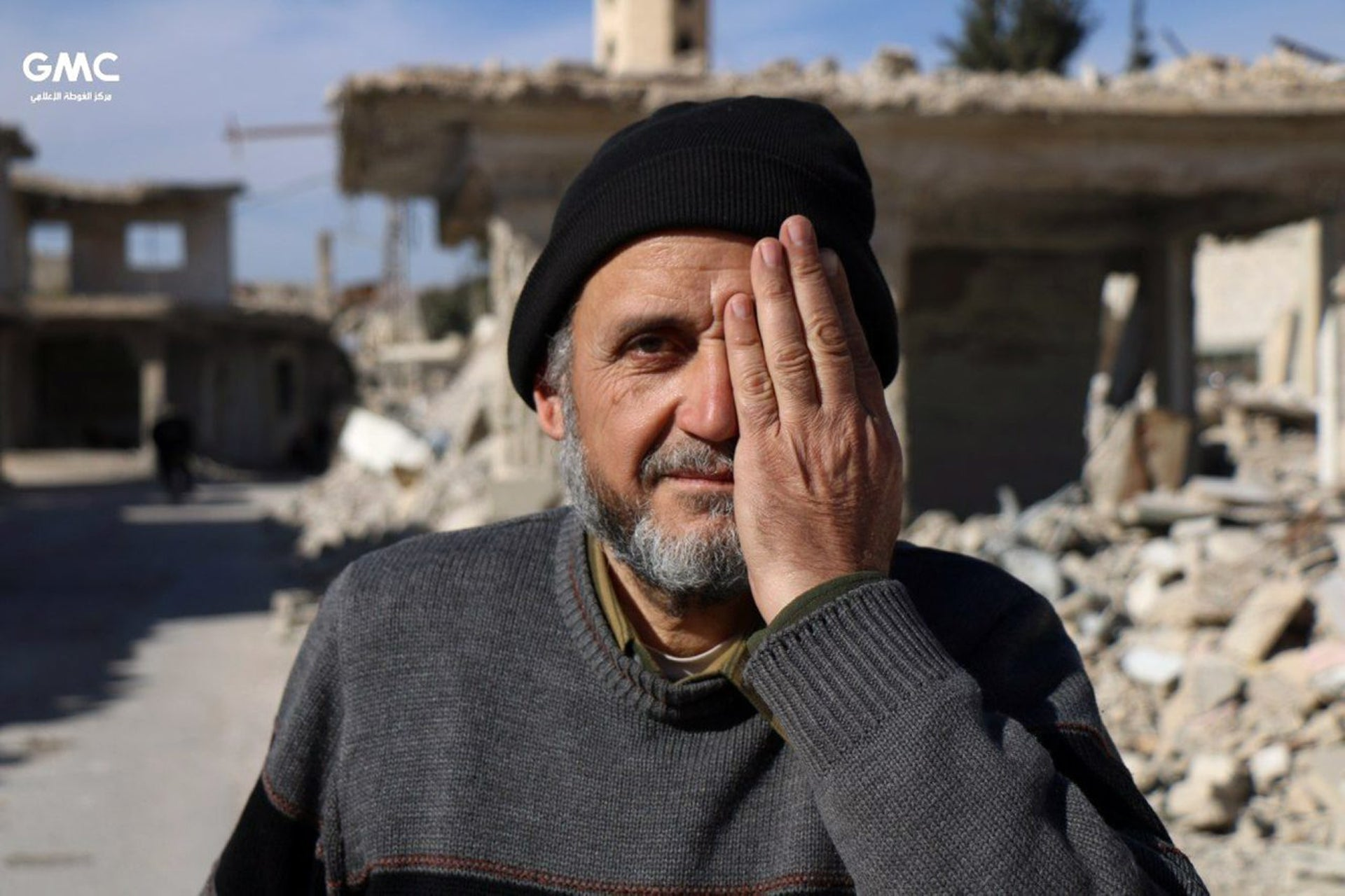 This photo provided on Monday, Dec. 18, 2017 by the Syrian anti-government activist group Ghouta Media Center, which has been authenticated based on its contents and other AP reporting, shows a man in Eastern Ghouta, a rebel-held suburb near the Syrian capital Damascus, covering his left eye in solidarity with Karim, who was injured weeks ago in a government bombing of the market of his hometown. Karim lost his mother and one eye in the bombings and is now becoming the face of a solidarity campaign with Eastern Ghouta, which has been besieged for nearly five years.