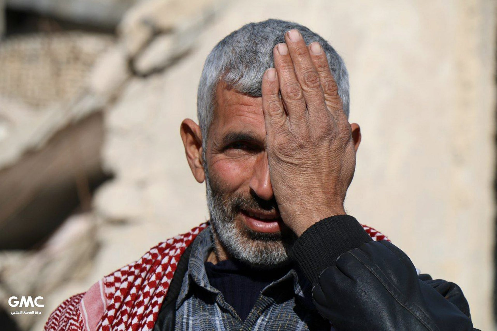 Syrian poses covering one eye with his hand as part of a campaign in solidarity with a baby boy, Karim Abdallah, who lost an eye, in Douma, Syria, on December 18, 2017.