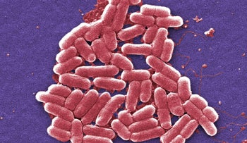 FILE PHOTO: Colorized scanning electron micrograph image made available by the Centers for Disease Control and Prevention shows a strain of the Escherichia coli bacteria. E. coli