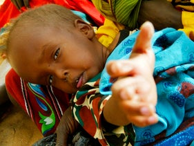 A malnourished Sudanese child waits for medical attention at a Medecins Sans Frontiers camp, one of an estimated 95,000 refugees who fled Sudan's Darfur region into neighbouring Chad. Jan 26, 2004