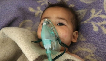 A Syrian child receives treatment following a toxic gas attack, April 4, 2017.