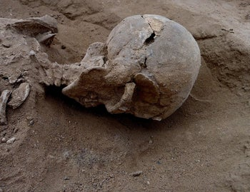 Lying in situ: The skull shows signs of lethal trauma.