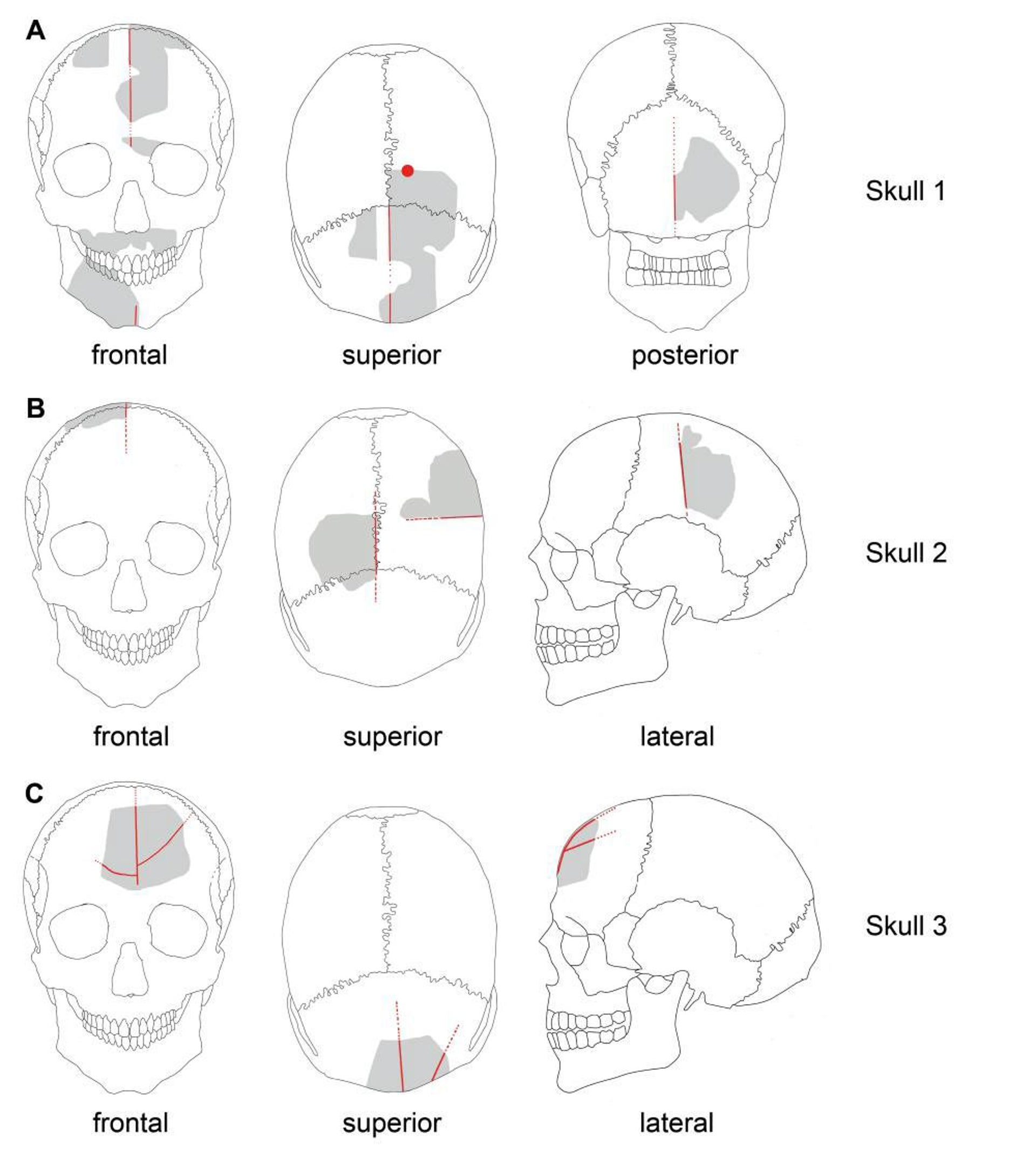 Schematic drawings of Göbekli Tepe skulls. Gray: preserved elements; red: modifications.