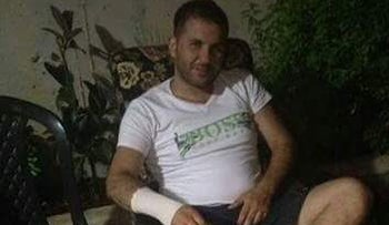 Ishaaq Abu Jabneh, a taxi driver who was beaten up in Jerusalem, August 2016.