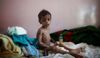 A malnourished boy sits on a bed at a malnutrition treatment center in Sanaa, Yemen October 30, 2016.