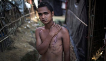 Mohammadul Hassan, 18, outside his family's tent in Jamtoli refugee camp in Bangladesh, shows the scars on his chest and back from being shot by soldiers who attempted to execute him, Nov. 24, 2017.