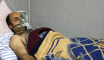 A Syrian man receives treatment at a hospital in the town of Afrin, February 16, 2018.