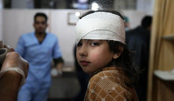 A wounded Syrian girl receives treatment at a make-shift hospital on the besieged Eastern Ghouta region on February 21, 2018.