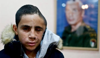 Mohammed Tamimi, cousin of Ahed Tamimi, after being shot by a rubber bullet in Nabi Saleh, January 2, 2018.
