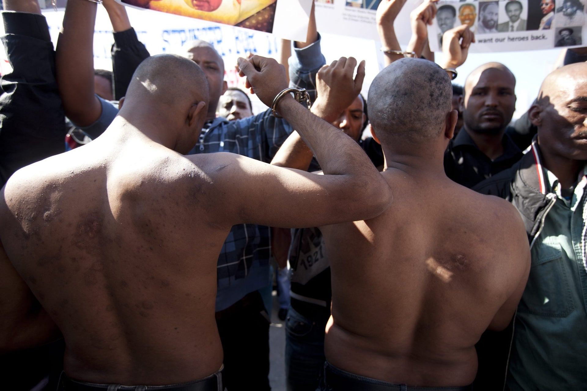 Eritrean asylum seekers showing scars of torture inflicted by Egyptian smugglers in the Sinai, at a protest at the Interior Ministry.