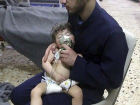 An infant with a breathing mask receiving treatment in Douma, April 10, 2018