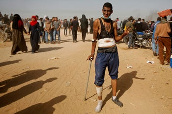 A Palestinian protester, who was wounded in a March 30 border demonstration, poses for a photo during clashes with Israeli troops along Gaza's border in Khan Younis, April 6, 2018.