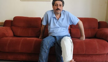 Israeli Arab activist Farar Jarah, head of the Mossawa Advocacy Center, at home after being injured during a demonstration in Haifa against Israel's policy in Gaza, May 21, 2018.