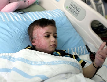 Four year-old Ahmed Dawabsha in hospital with burns after a firebomb attack by Jewish terrorists that killed his parents and brother at their home in 2015.