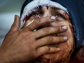 Aida cries as she recovers from severe injuries after Bashar Assad's Syrian Army shelled her house in Idlib, north Syria, killing her husband and two of her children. March 10, 2012