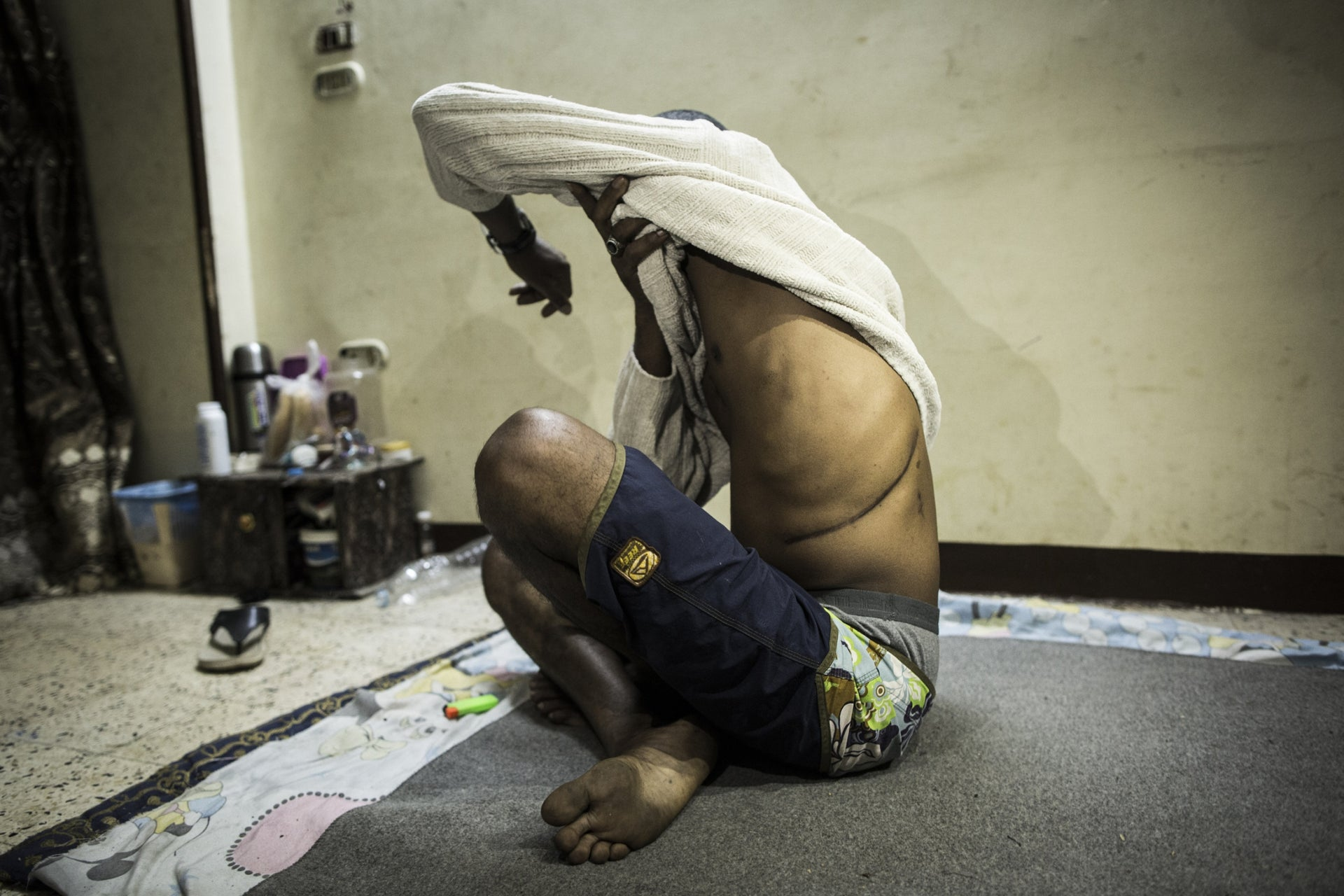 A victim of illegal organ harvesting in Egypt shows his scar.