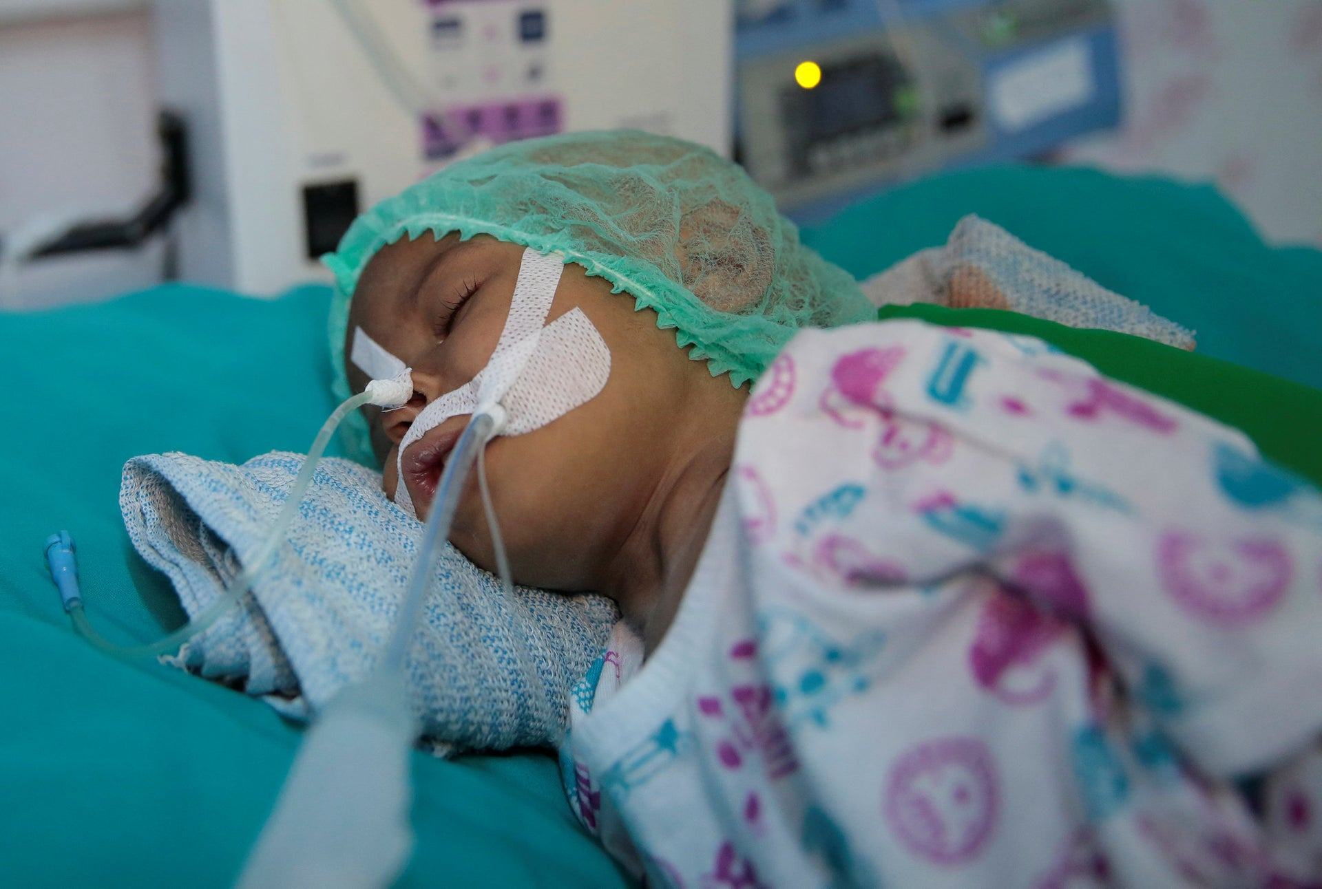 A malnourished child receives treatment at a  feeding center in a hospital in Hodeida, Yemen,  Sept. 27, 2018.