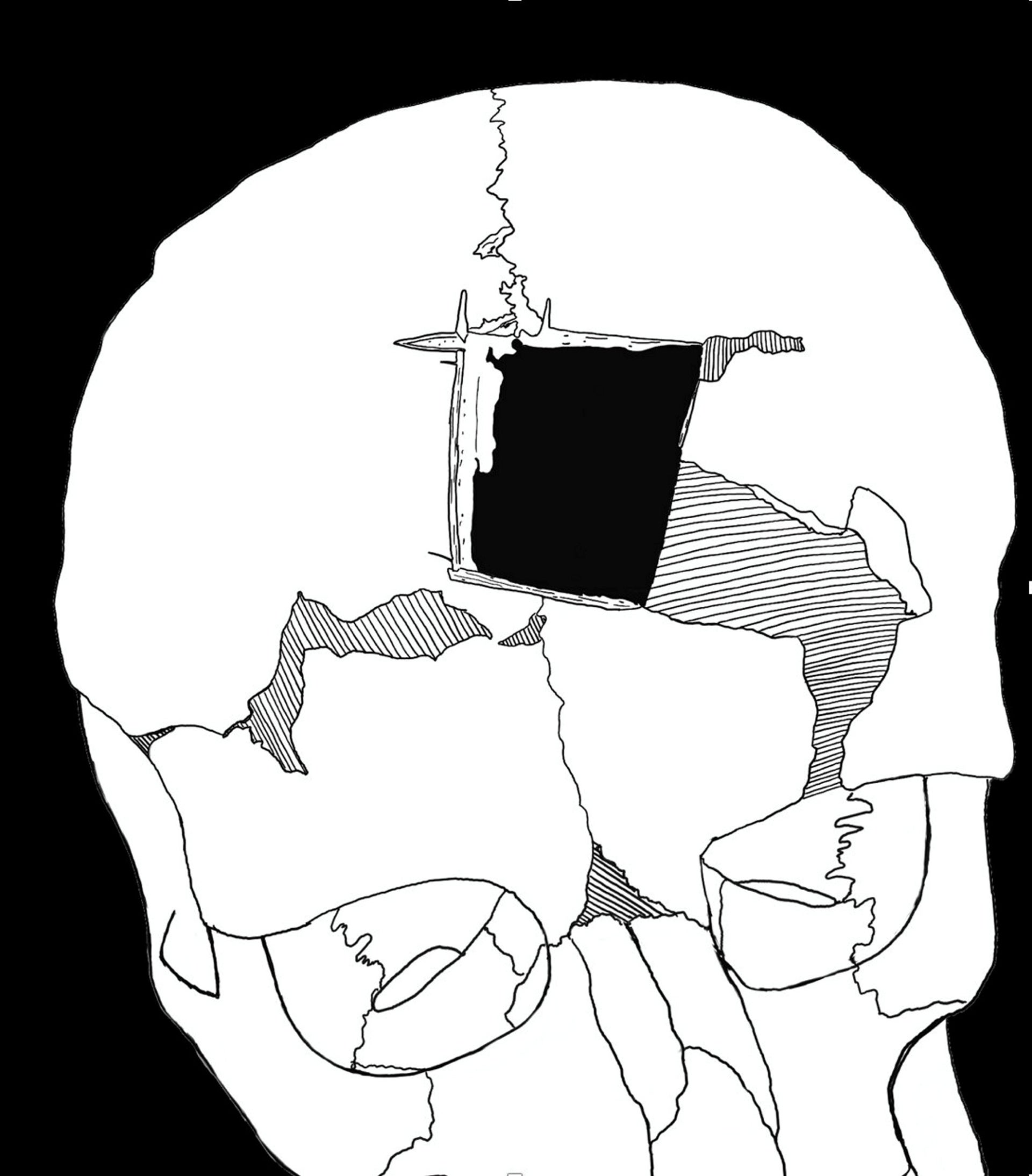 A sketch reconstructing how the trephinated skull found in Megiddo looked