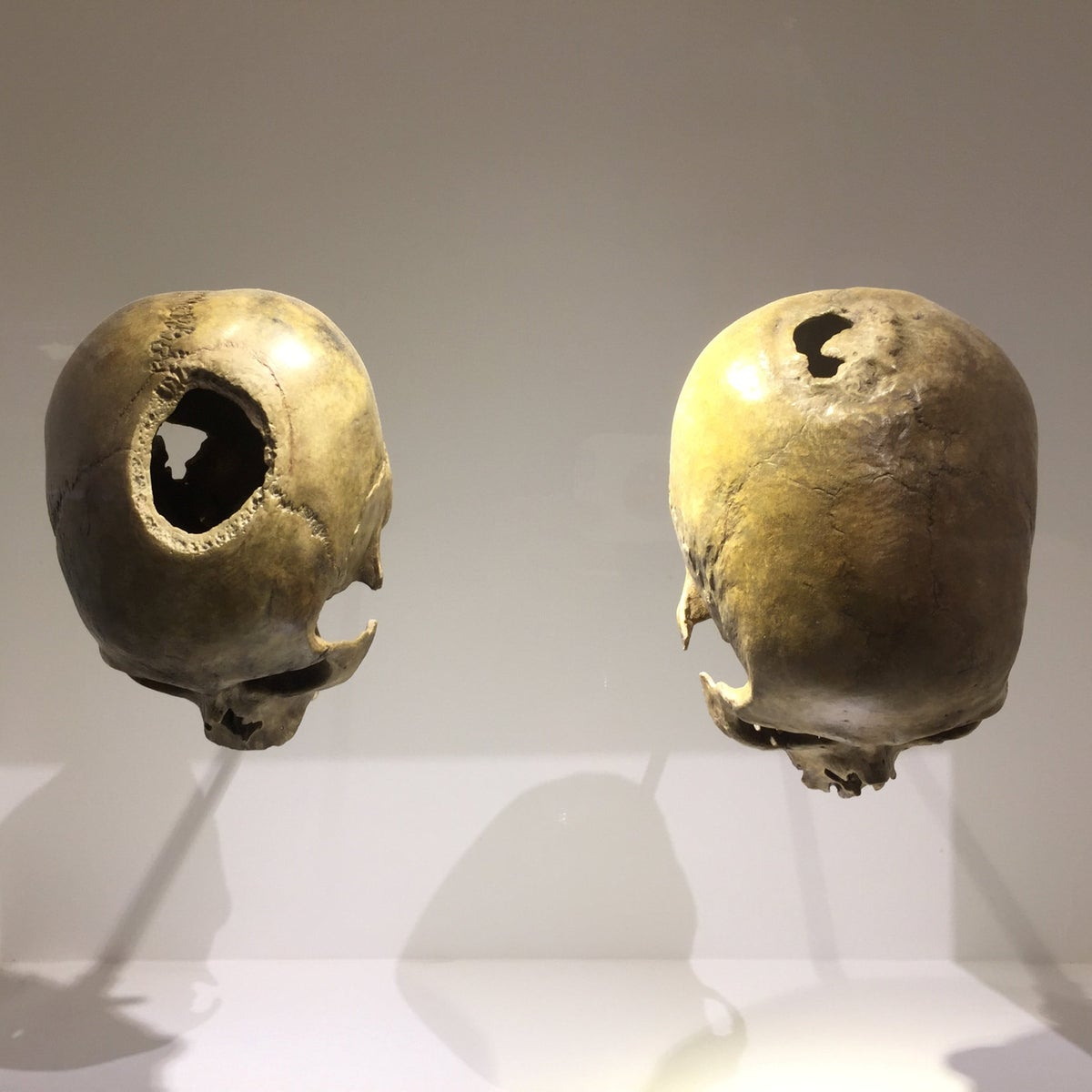Two 6,000-year-old trephinated skulls from the Judean desert. Bone regrowth showed the individual on the right survived the procedure. The one on the left did not.