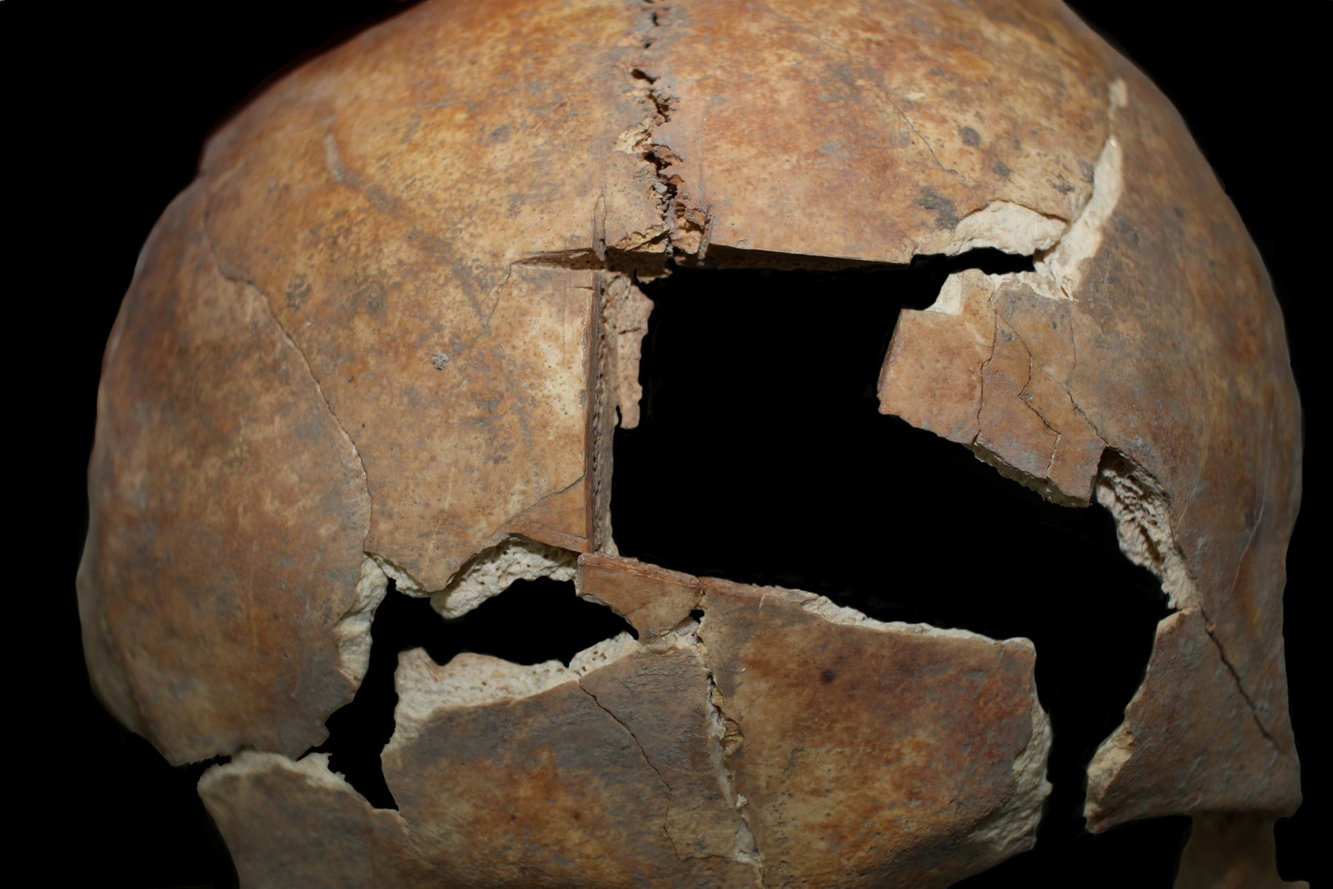 The trephinated skull of one of the brothers found in a Late Bronze tomb in Megiddo
