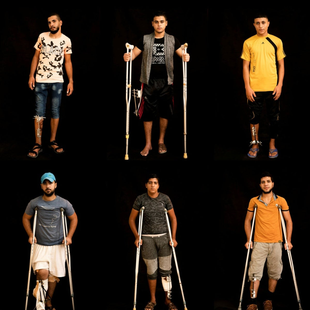 In this combination of 10 photos taken on Sept. 19, 2018, Palestinians shot in the legs during demonstrations at the Gaza strip's border with Israel pose as they await treatment at a Gaza City clinic run by MSF (Doctors Without Borders). Israeli forces deployed along the volatile border have fired live rounds at rock-throwing Palestinian protesters since demonstrations began in March against Israel's long-running blockade of Gaza. Israeli snipers have targeted one part of the body more than any other: the legs.
