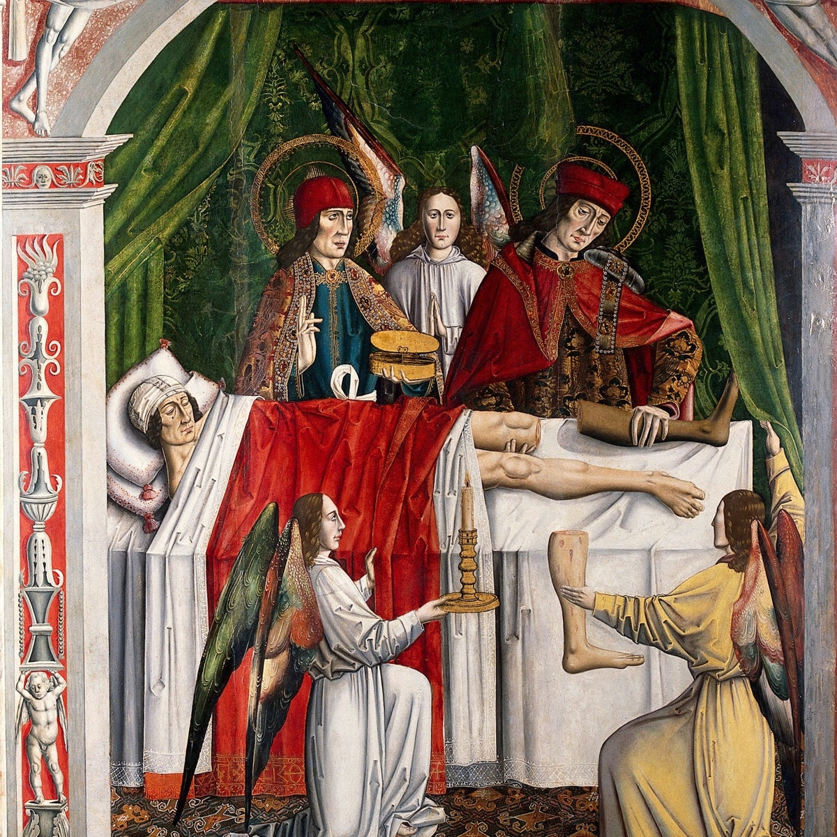 A verger's dream: Saints Cosmas and Damian performing a miraculous cure by transplantation of a leg. Oil painting attributed to the Master of Los Balbases, ca. 1495