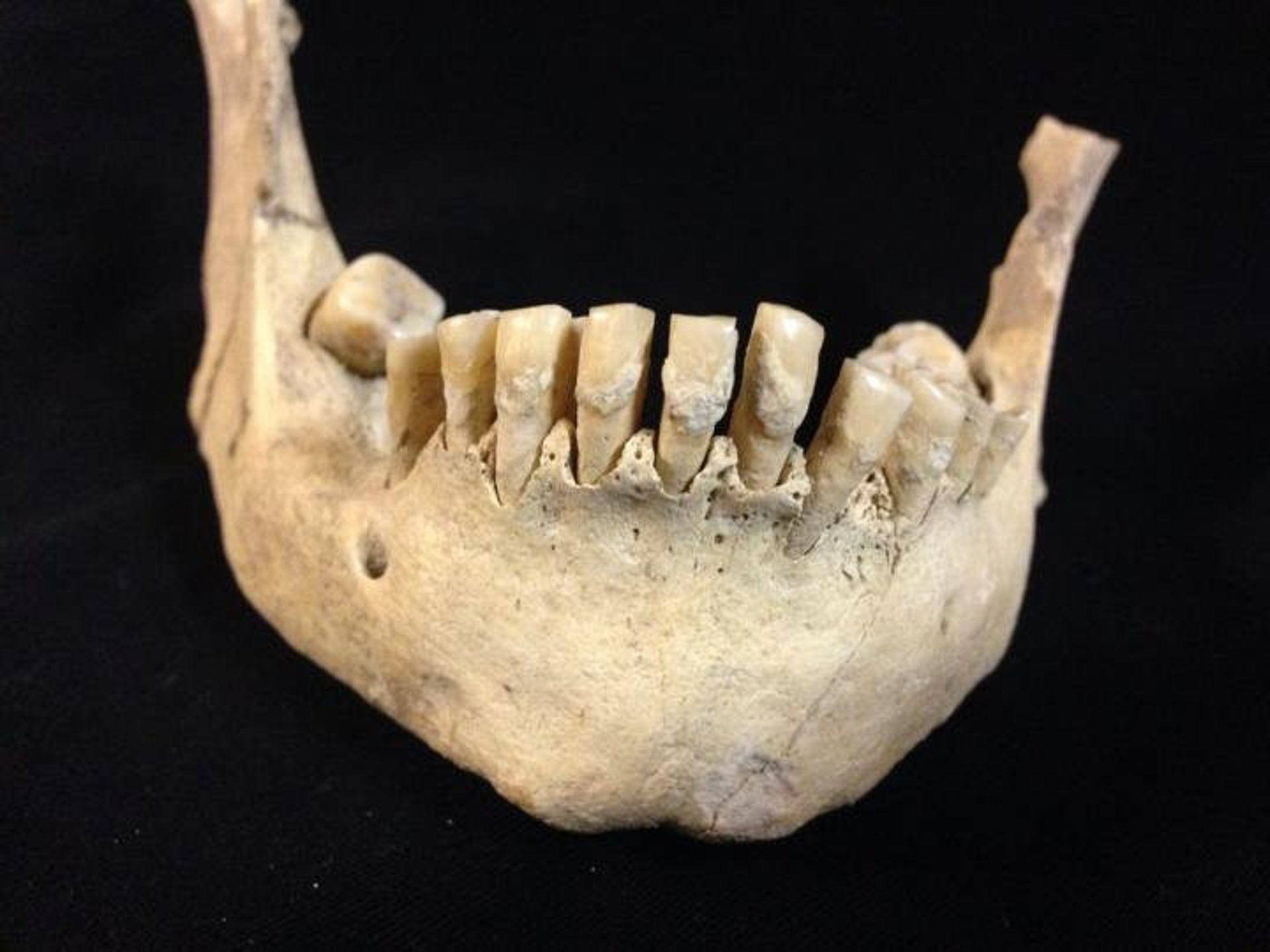 Milk proteins were found in the plaque of seven Neolithic Britons