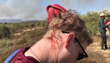 Rabbis for Human Rights activist who was allegedly attacked by Jewish settlers in the Palestinian village of Burin in the northern West Bank, October 16, 2019.
