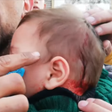 The baby that was hit by the stone in the attack in Hebron, November 23, 2019.