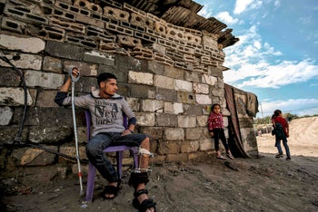 Palestinian youth who was injured in a demonstration he sits on a chair by his home in Gaza City on December 10, 2019.