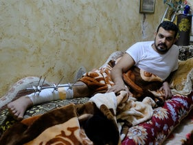 Abdullah Abu Tehaimer, at home this week in the refugee camp. It will be a year before he can stand up and walk again, his doctors say.