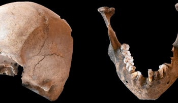 The skull and mandible found at Stabiae. Tests showed they belonged to two different people.