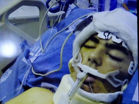 Mohammed Shatawi, in the hospital this week. Hovering between life and death.
