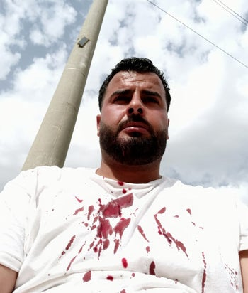Arua Nasan, showing injuries he suffered on March 24, 2020, after a confrontation with Jewish settlers near the Ein Samia spring in the West Bank.