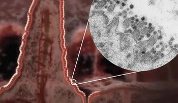 Illustration of a villus in the intestine with a zoom-in to an electron microscopy image of coronavirus SARS-CoV-2 (dark circles) at the edge of an intestinal cell.