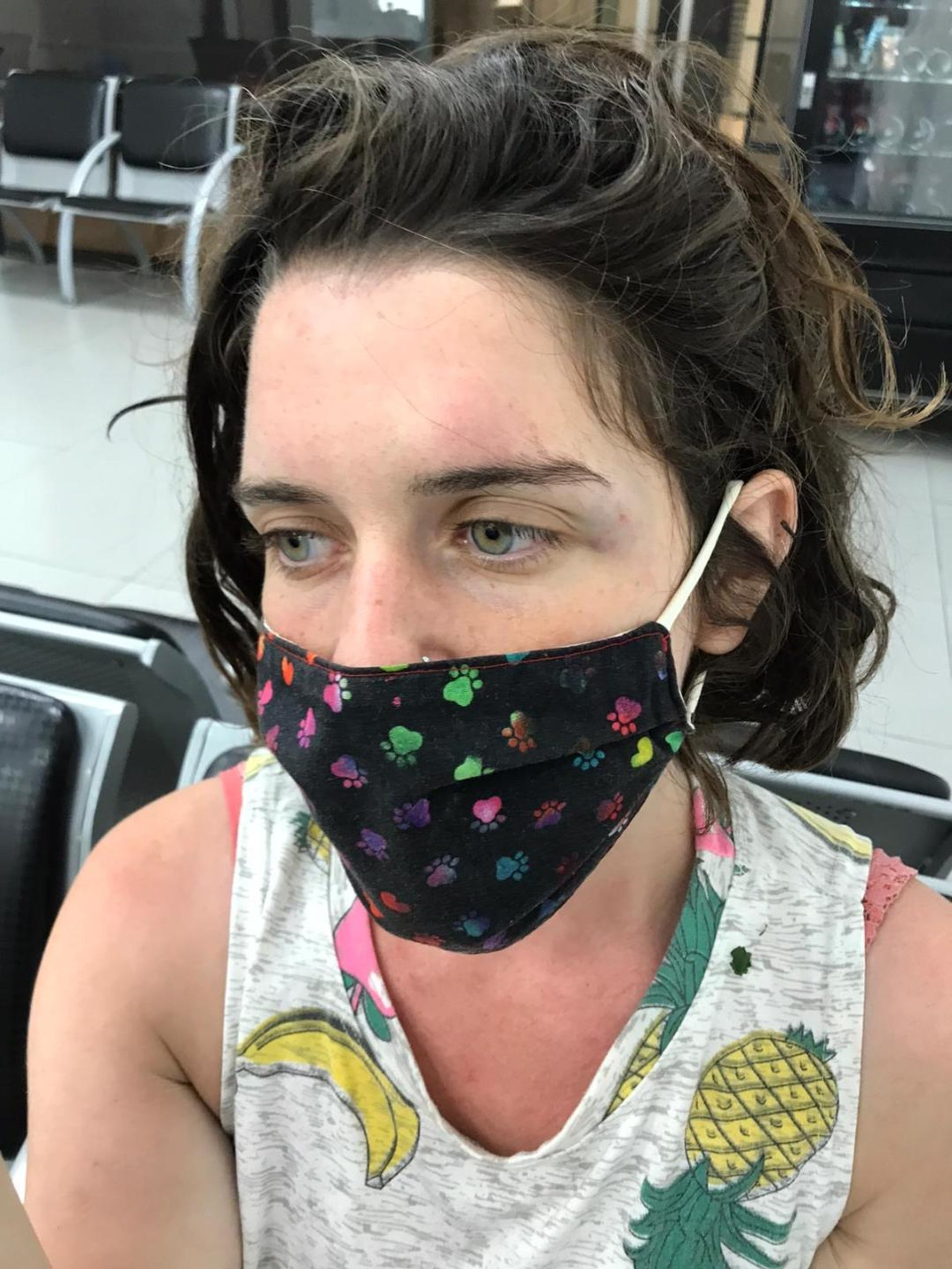 Tamar Schneck. Suffered a concussion when she was thrown to the ground after taking a direct hit from a water cannon at a protest, Juny 2020.