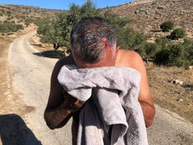 A Palestinian man wounded by stone-throwing while harvesting olives in the village of Ni'lin, West Bank, October 2020.