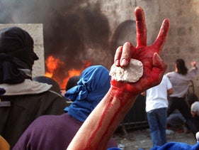 A Palestinian youth holding a stone in his blood-stained hand after carrying a dead fellow protester outside Jerusalem's Old City, December 8, 2000.
