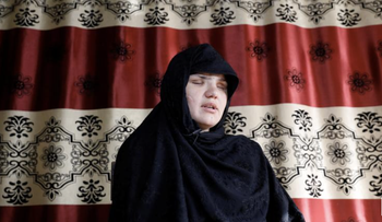 Khatera, 33, an Afghan police woman who was blinded after a gunmen attack in Ghazni province, speaks during an interview in Kabul, Afghanistan October 12, 2020.