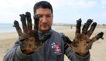 A man shows tar on his hands in the aftermath of an oil spill that drenched much of the Mediterranean shoreline, in Tyre nature reserve