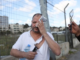 Israeli lawmaker Ofer Cassif covers his eye after being hit by police at an East Jerusalem demonstration protesting Jewish settlement activity, on Friday.